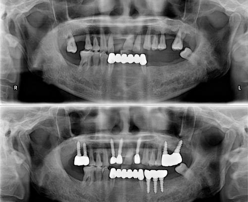 오는 7월부터 65세 이상 노인의 치과 임플란트 본인부담률이 기존 50%에서 30%로 내려간다. 사진/뉴시스
